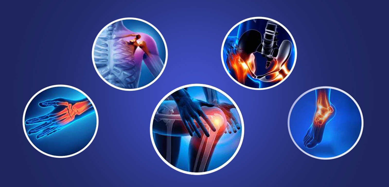 Orthopedic Cost In India | Best Orthopedic Hospital In India - Medsurgeindia