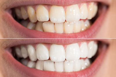Teeth Whitening Archives Best Hospitals In India