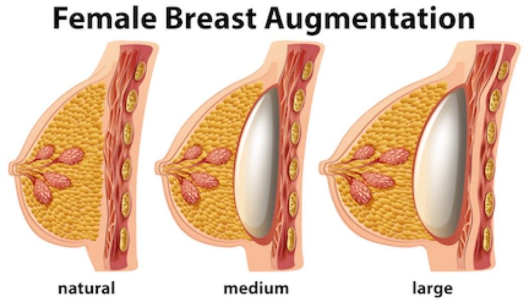 Breast Augmentation Cost In India Affordable Treatment In India