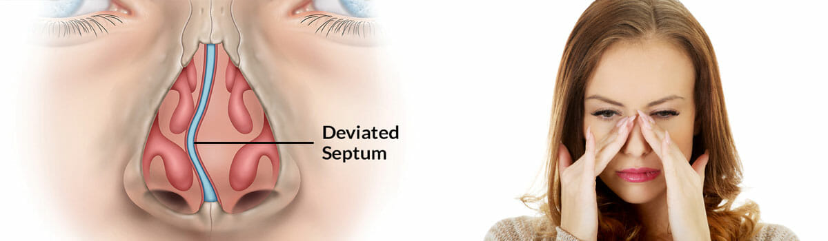 FESS Functional Endoscopic Sinus Surgery Price in India - How Much Does It Cost To Get A Sinus Surgery